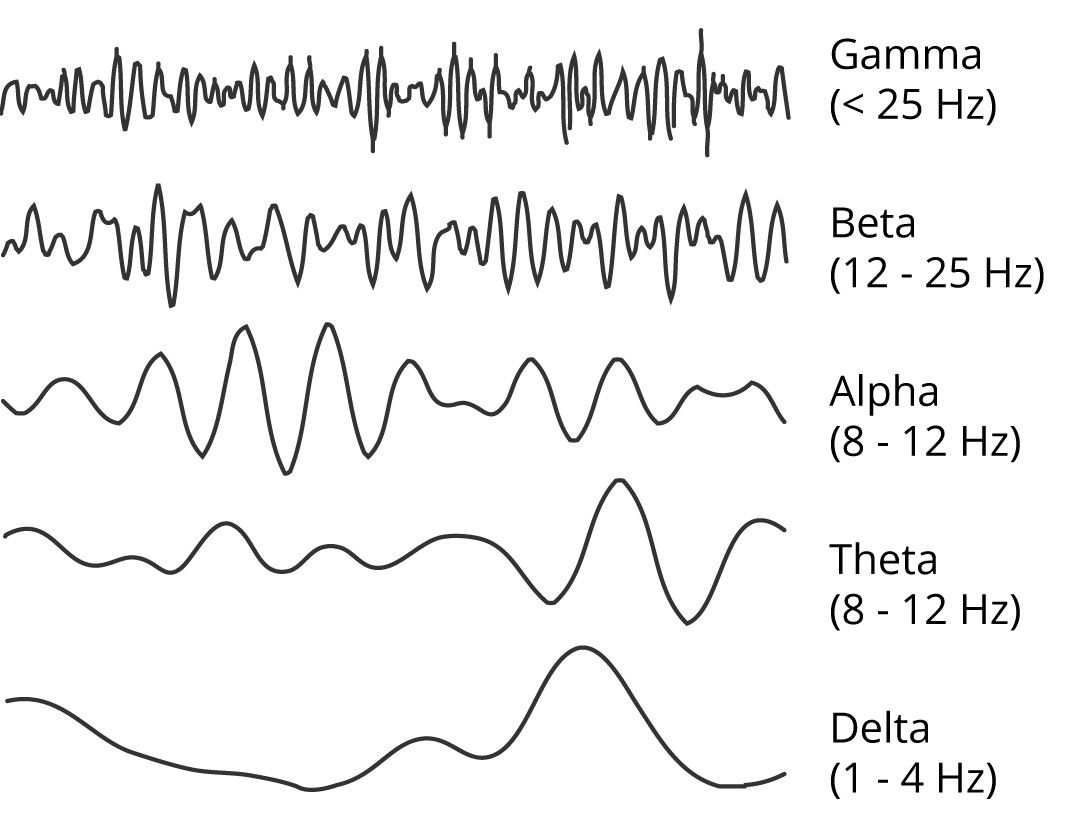 An image illustrating the key frequency ranges of EEG activity.