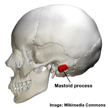 An image of a human skull with the mastoid process highlighted in red.
